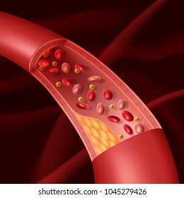 Vector illustration of human vascular atherosclerosis cutaway view of accumulated plaque in an afflicted blood vessel in section with red cells