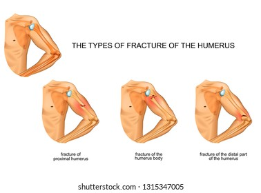 vector illustration of humerus fractures