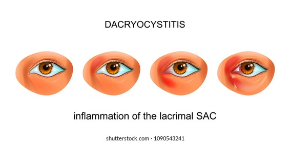 vector illustration of inflammation of the tear SAC of the eye. dacryocystitis