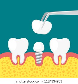 Vector illustration installation of a dental implant