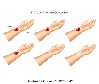 vector illustration of the installation of a fistula for hemodialysis