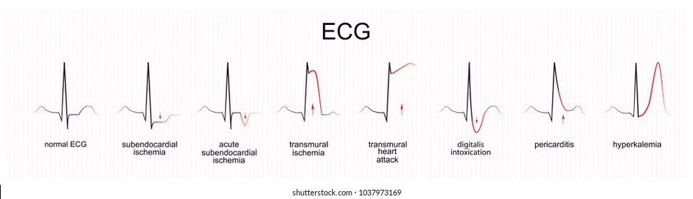 vector illustration of the interpretation of ECG. myocardial ischemia. infarction
