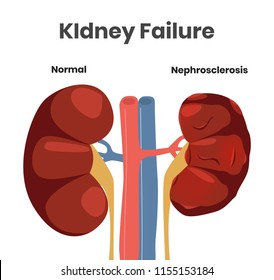 Vector illustration of the kidney failure. Normal kidney versus kidney affected with nephrosclerosis. Scalable illustration of the urine system with the vessels