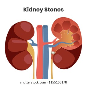 Vector illustration of the kidney stones. Obstruction of the right urether with the stone, while left kidney is normal