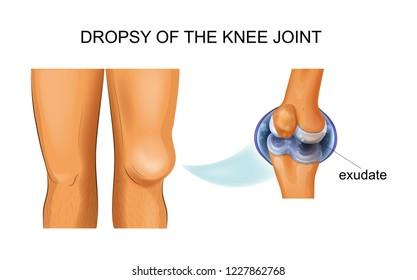 vector illustration of knee hydrarthrosis, articular dropsy