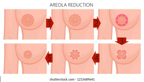 Valuable information 34b breast size blog women aerola apologise, but