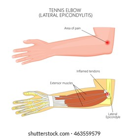 Vector illustration of Lateral Epicondylitis or tennis elbow.  Used: Gradient, transparency, blend mode.