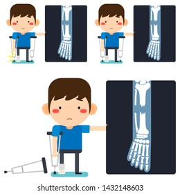 Vector illustration, Leg x-ray Tiny cute cartoon patient man character right leg broken in gypsum bandage or plastered leg standing with axillary crutch on white background
