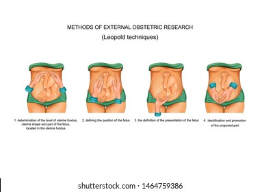 vector illustration of Leopold techniques in obstetrics