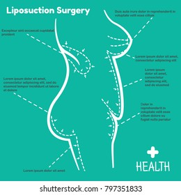 Vector illustration of liposuction surgery. Infographics female body on a blue background.