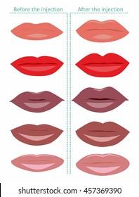 Vector illustration. Lips injection.