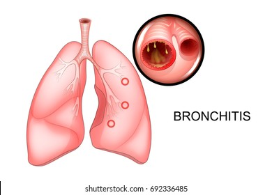 vector illustration of lungs affected by bronchitis