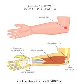 Vector illustration of Medial Epicondylitis or golfer's elbow. Used: transparency, blend mode, gradient.