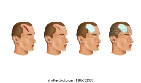 vector illustration of a medical bandage on a head