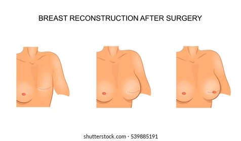 vector illustration for medical publications. carcinoma. reconstructive surgery