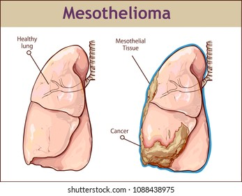 vector illustration of a Mesothelioma cancer
