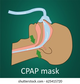 Vector illustration of normal breathing with CPAP mask.