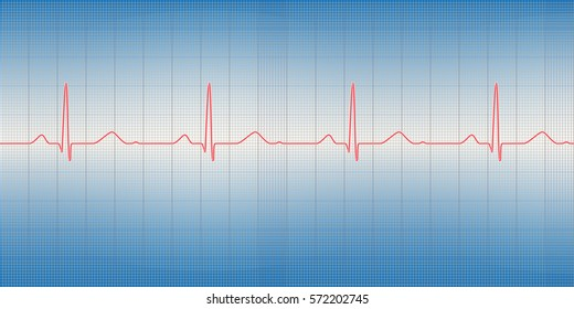 Vector illustration of normal cardiogram