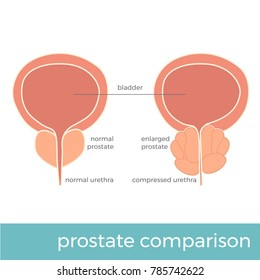 vector illustration of normal and enlarged prostate comparison