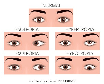 Vector illustration of normal human eyes and eyes with problem. Strabismus or crossed eyes types - esotropia, exotropia, hypertropia, hypotropia. For advertisement and medical publications. EPS 10.