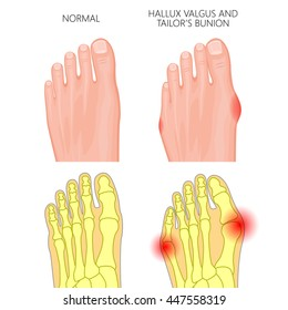Vector Illustration of the normal human foot, valgus deviation of the first toe  and tailor's bunion. External and skeletal views.  Used: gradient, transparency, Blend mode.