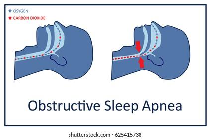 Vector illustration of obstructive sleep apnea.