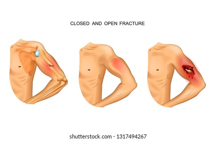 vector illustration of open and closed fracture