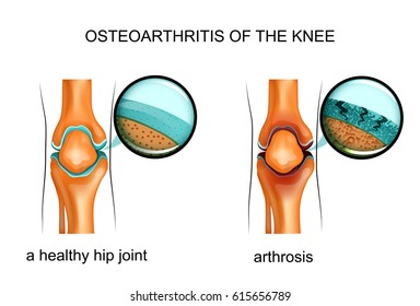 vector illustration of osteoarthritis of the knee