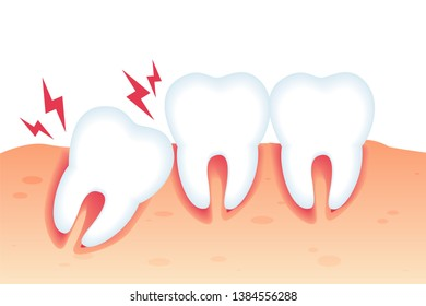 Vector Illustration Pain from Wrong Bite Flat. Dental Diseases and Pain from Abnormal Tooth Growth. Crooked Teeth or Malocclusion. Specialized Orthodontic Care. Dental Pathology Poster.