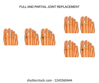 vector illustration of partial and complete arthroplasty of the big toe joint