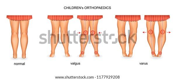 Vector Illustration Pediatric Orthopedics Valgus Varus Stock