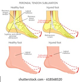 Vector illustration of Peroneal Tendon Injuries. Peroneal tendon dislocation or subluxation when the superior peroneal retinaculum or retinacula is torn. Lateral ankle injury.