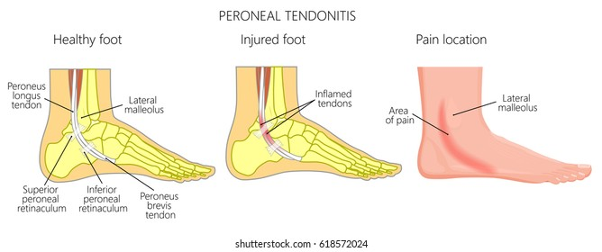 vector illustration of peroneal tendon injuries  peroneal tendonitis   inflammation of peroneal tendons  lateral