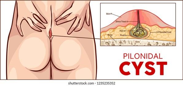 Vector illustration Pilonidal cyst formation