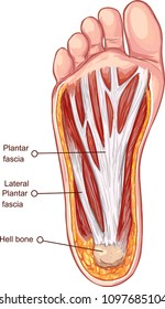 Vector illustration of a Plantar fascitis illustration