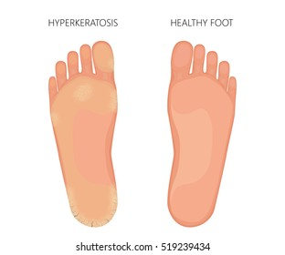 Vector illustration of Plantar Hyperkeratosis of the foot with dry sole skin and cracked heel. Used transparency.