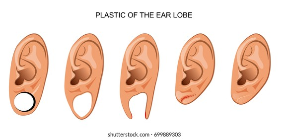 vector illustration of a plastic ear after ear tunnel