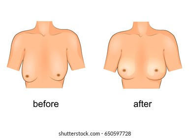 vector illustration of plastic surgery of the breast. before and after