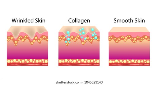 Vector illustration with process of getting skin skin younger with help of callogen