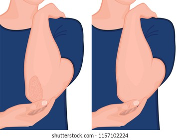Vector illustration. Psoriasis on the elbow skin before and after treatment. For advertising and medical publications. EPS 10.