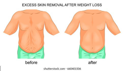 Skin Removal Surgery Stock Vectors Images Vector Art Shutterstock