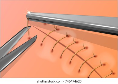 vector illustration of removal of surgical stitches