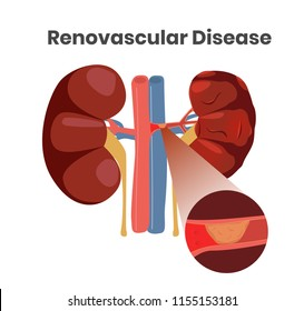 Vector illustration of the renovascular disease. Illustration of the thrombus in the artery of the left kidneys. Close up illustration of the vessels with plaque