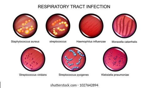 vector illustration of respiratory tract infections. microbiology, bacteriology.