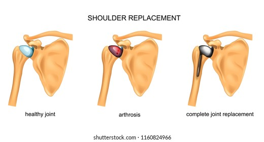 vector illustration of shoulder replacement. surgery. traumatology