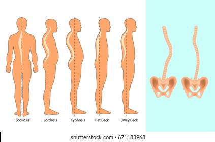 Vector illustration of spinal deformity types: scoliosis, lordosis and kyphosis. Body posture defect. Infographics of spine diseases.