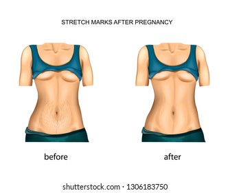 vector illustration of stretch marks after pregnancy. before and after.