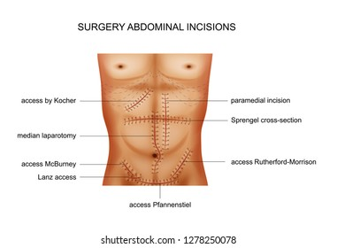 vector illustration of surgical incisions of the abdominal cavity