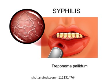 vector illustration of syphilis. chancre. Treponema pallidum
