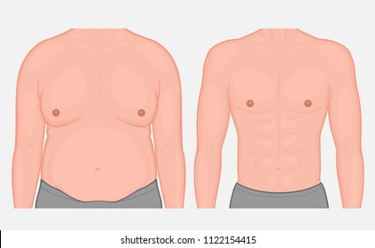 Vector illustration torso of a male before and after weight loss and sports. Front view. For medical publications and advertising of cosmetic, plastic procedures, stomach shunting, diet, sport. EPS 10